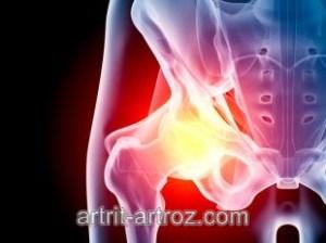 artrozė gydymas 2 žingsnis buvau jaunas ir visi sąnariai skauda
