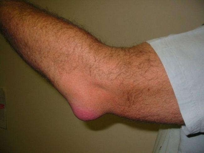 odos ligos alkūnės sąnarys