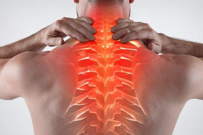gydymas bendrą sąnarių osteochondrozė