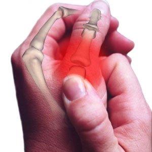 žiūrėti artritas pirštai velniop skausmą priešais lietus