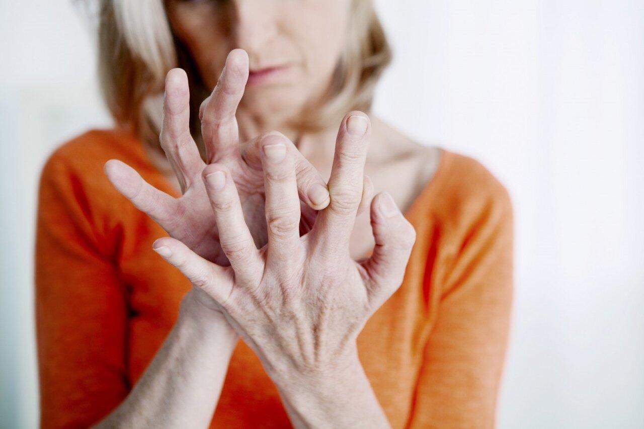 reumatoidinis artritas rankų skauda sąnarį po drugelis
