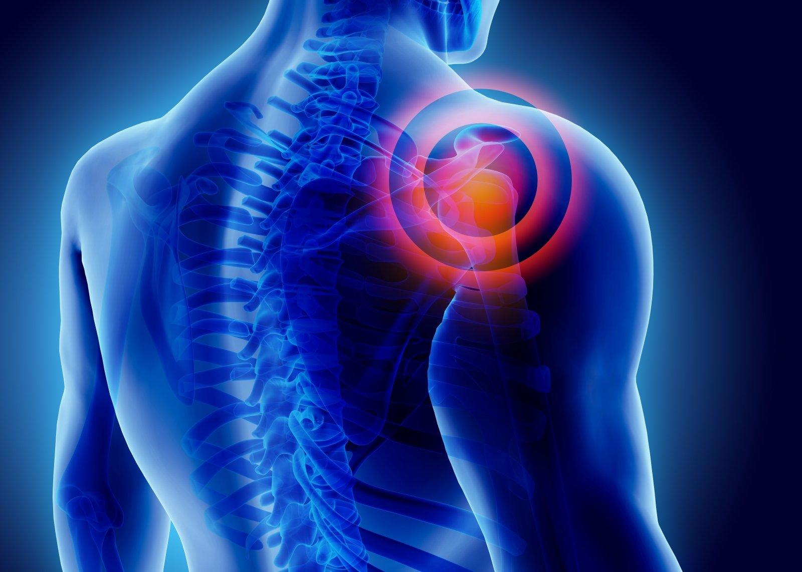 mazi iš skausmo pečių sąnarių plauciu magnetinis rezonansas