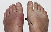 skauda alkūnės sąnarius kai sugriežtinti gydymas sąnarių apatiniame