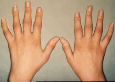sąnarių skausmas ką ji gali būti susiaurėjimas plyšio bendra gydymas