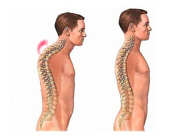 deginantis skausmas po desine mente skausmas krūtinės dešinėje pusėje