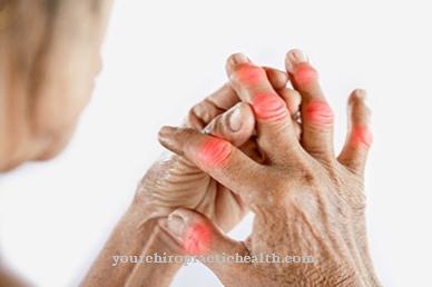 sąnarių skausmas kodėl