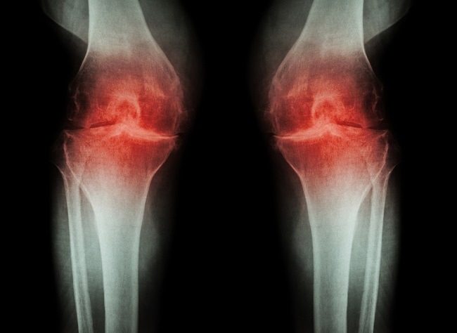 artrozė gliukozaminas ir chondroitino