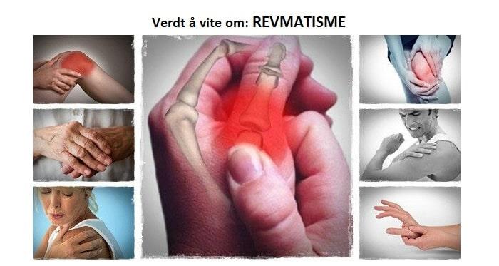 reumatizmas sąnarių kas yra gydymo metodas osteochondrozė iš alkūnės sąnario gydymo