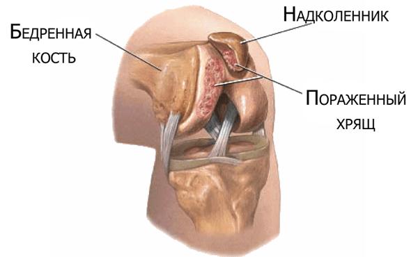 artrozė iš 2 laipsnių sąnarių 45 metai skauda gydymas