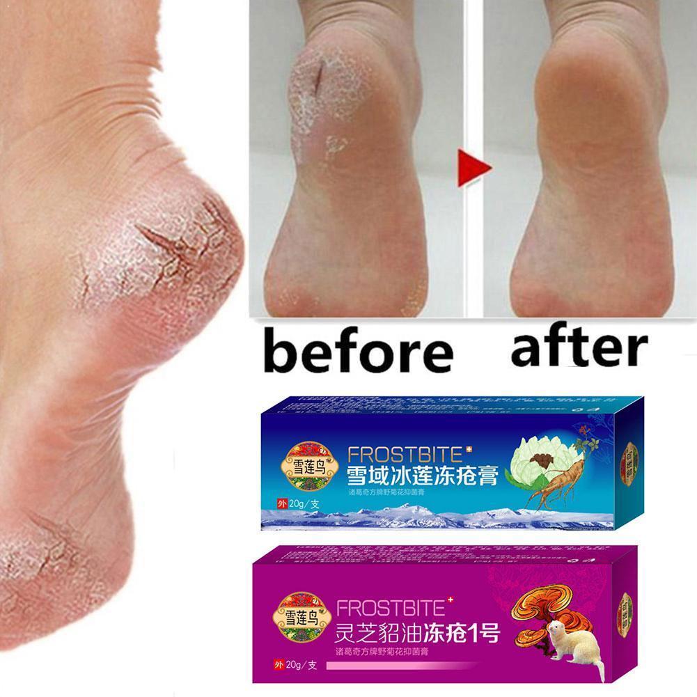 tepalas nuo skausmo pėdos pėdos