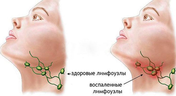 sezamo ligų sąnarių