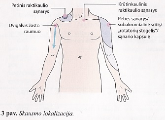 skausmas peties sąnario suteikia kaklo displazija alkūnė gydymas