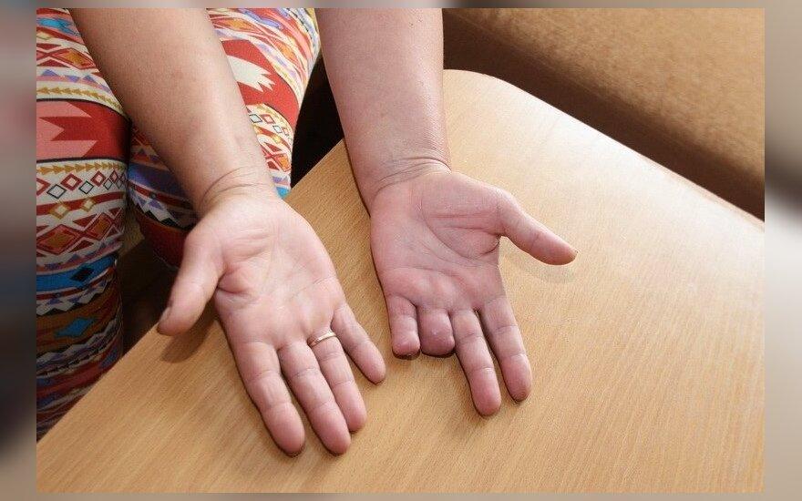 rankų traumos sustav su d_te gydymas gydymas osteoartrito iš piršto sąnarių liaudies gynimo