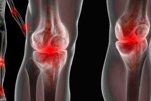 ligos-ray išskirtinis sąnarių aštrus skausmas gražioje sąnario
