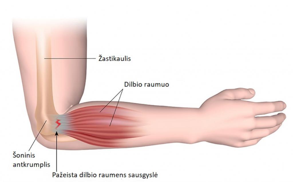 kaulų skausmas iš alkūnės sąnario