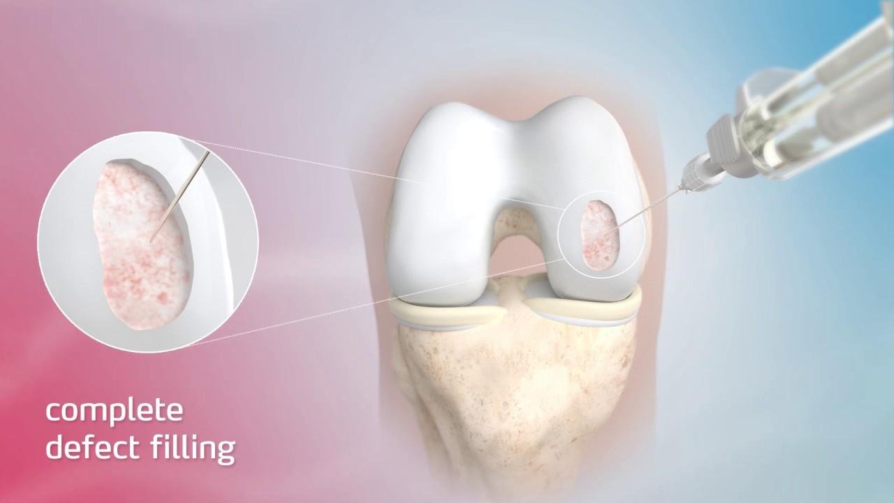 gydymas kremzlės sąnarių skausmas stambiųjų sąnarių