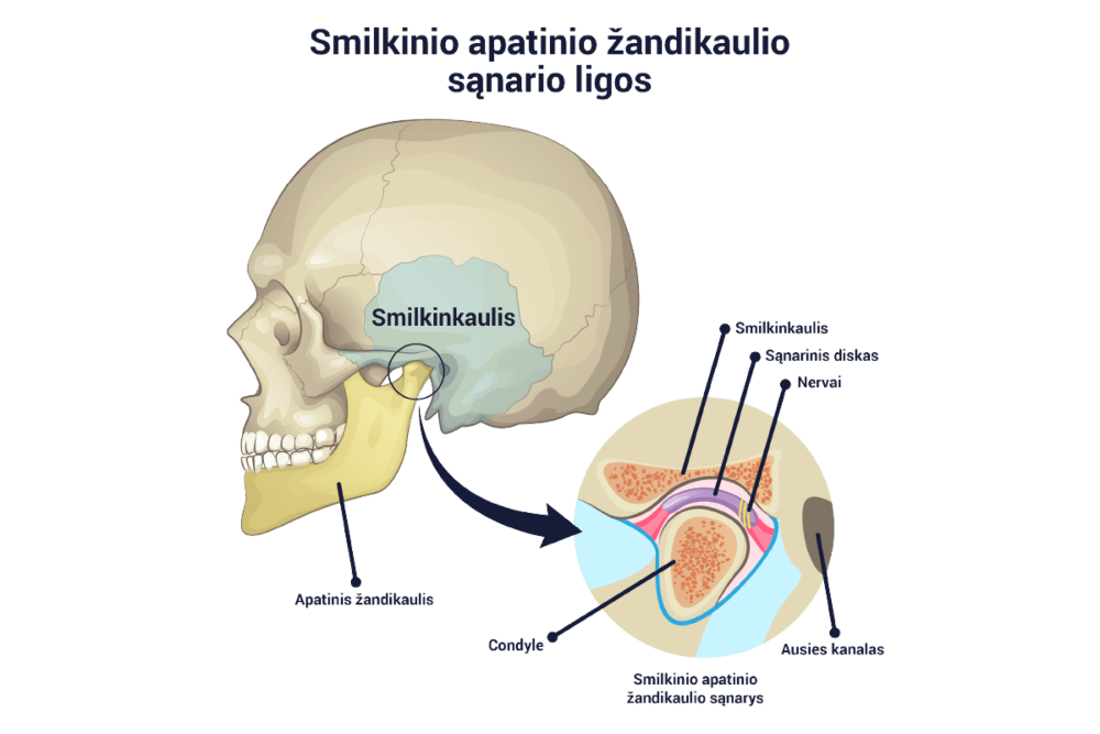 gydymas podagra artrozės viduriniosios piršto sąnarys skauda