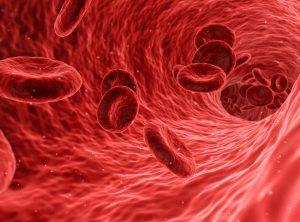 anemija ligų sąnarių