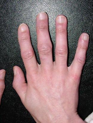 artritas ant pirštų pasekmes