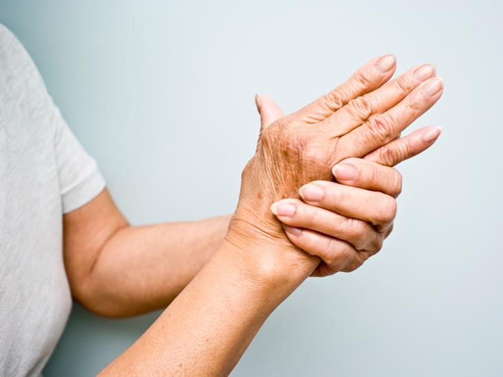 artritas iš mažų sąnarių