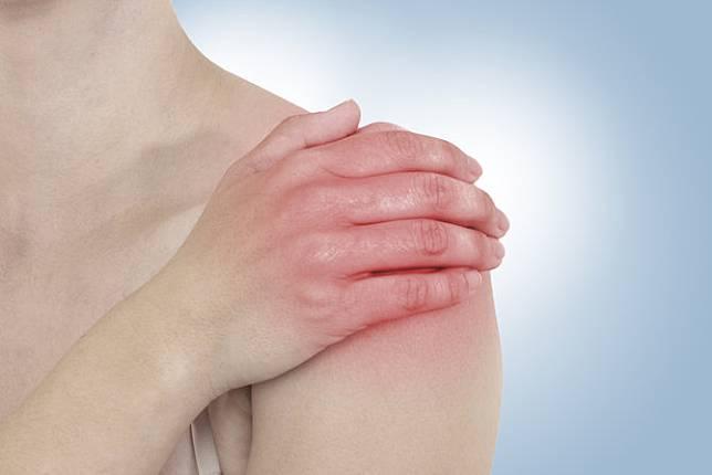 artritas iš pleceluchean sustava
