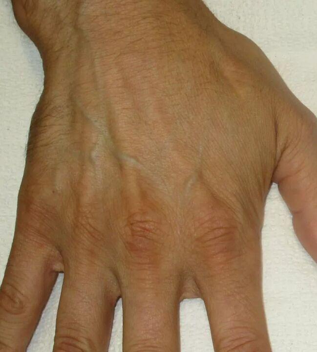 sukelti skausmo nykščio sąnario lėtinis uždegimas kaulų sąnarių