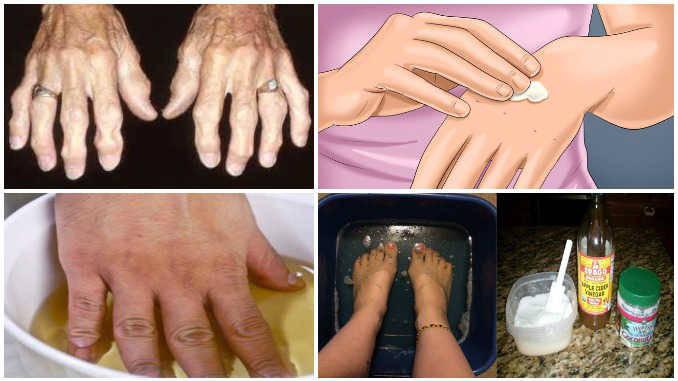 artritas piršto rankas liaudies gydymas