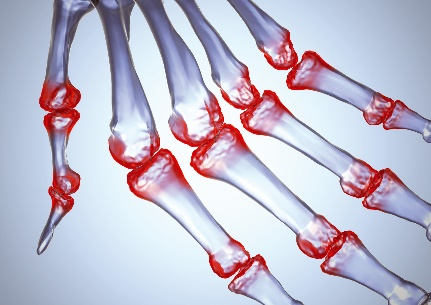 artritas rankų valymo tepalai