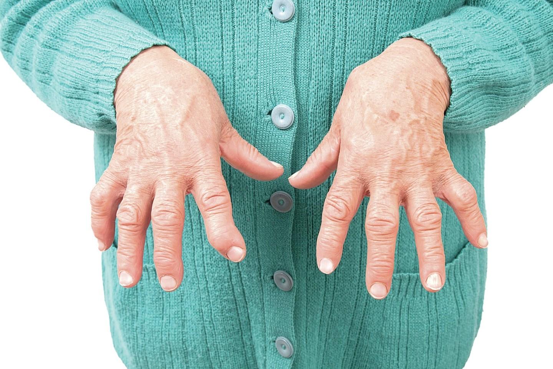 artritas sąnarių kas tai išlaikyti plėtros po traumos