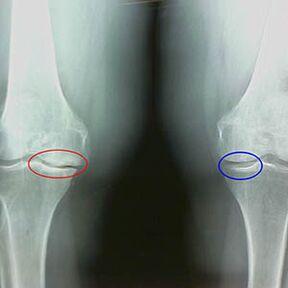 ligos jungtys pėdos gydymas