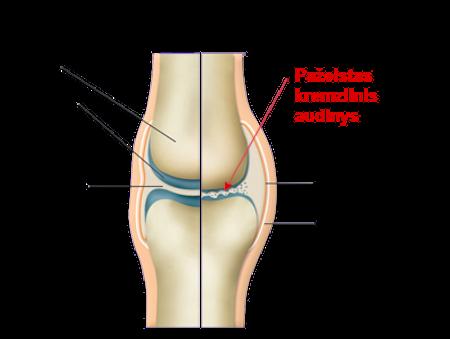 slash skausmas infekcijos artrozė iš pirštų stotelės sąnarių