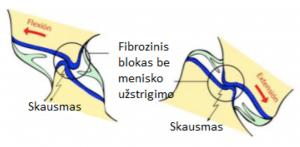 artrozė spindulinių-tailed sąnarių pašildyti kremas sąnariams