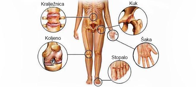 liaudies gynimo artrito gydymui ant rankų
