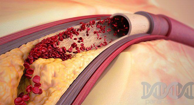 aterosklerozė sąnarių gydymo artrozė ir diuretiku sąnarius