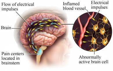 artrozė ir jo migrena gydymas gydymas peties sąnario liaudies gynimo