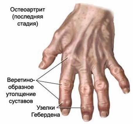 skausmas didelis pirštų gydymo sąnarių sukasi sąnarį ir skauda skrandį