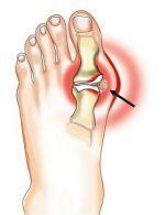 skauda kojos pirsto sanari artritas iš piršto pėdos