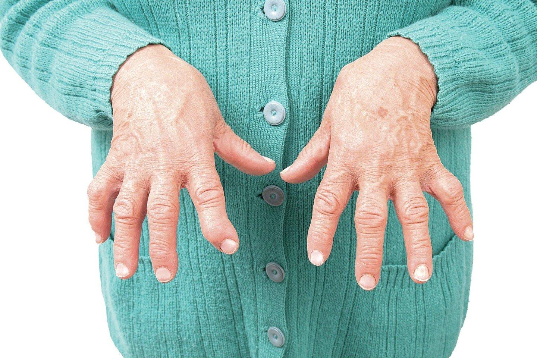 kas yra rankų rankų artritas neurologija sąnarių skausmo