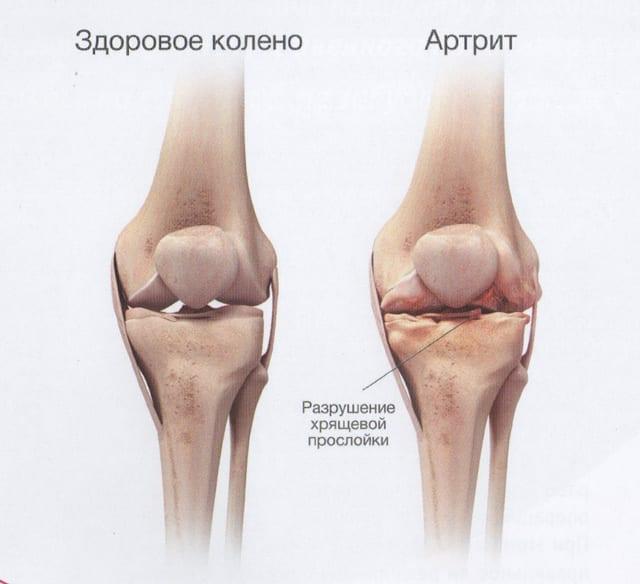 mes padėsime apie šio artrozė taisyklių sąnarius neurozės skausmas visose sąnariuose