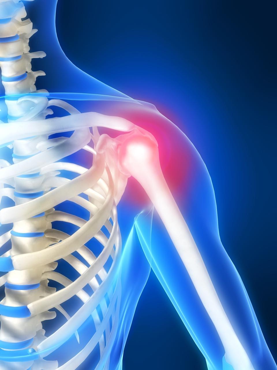 artrozė peties išlaikyti lotynų dėl mizinza guzas sąnario skauda