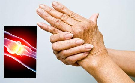 poliartritas sąnarių ir jos gydymas gydymas artrozė plaukimo