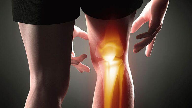kelio sąnario artrozė jeigu jungtinis ženklai