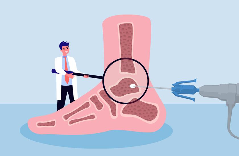 artritas artrozė gydymas liaudies artrozė pėdos sulyginti 1 etapas