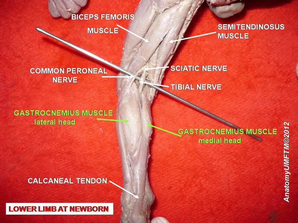 dvigalvio raumens sausgyslės plyšimas stalo sąnarių gydymas