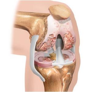 kapsulės nuo sąnarių artrozės