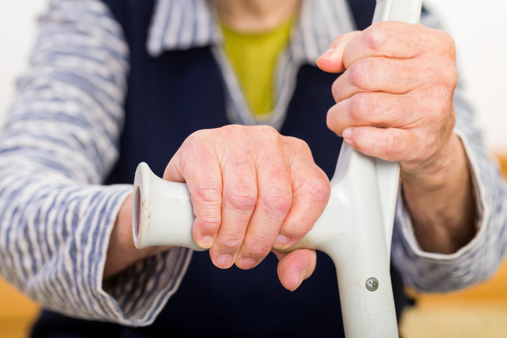 artrozė apie į liaudies gynimo gydymo pirštais