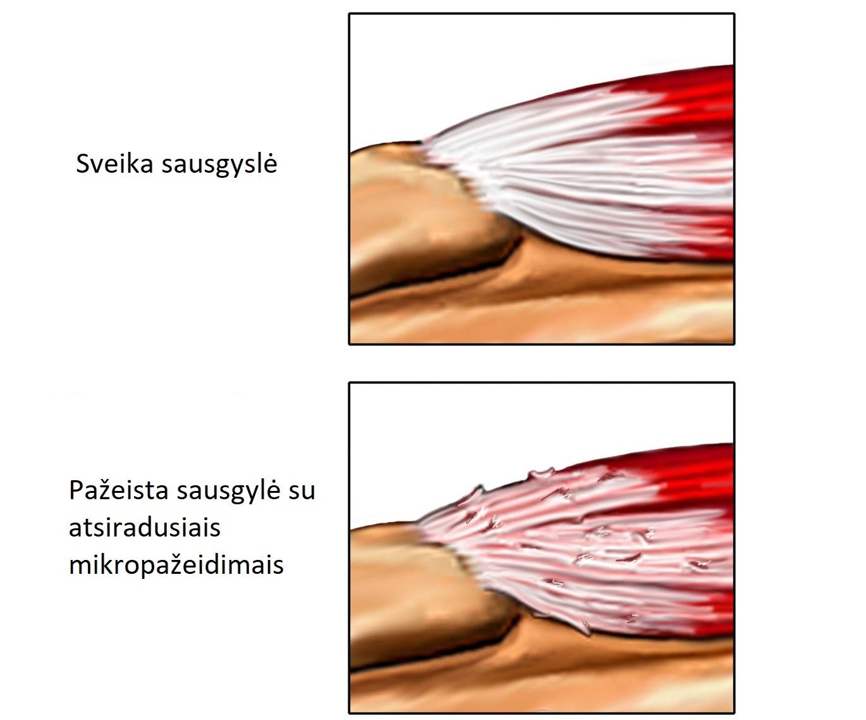 kairiojo peties sąnario skausmas