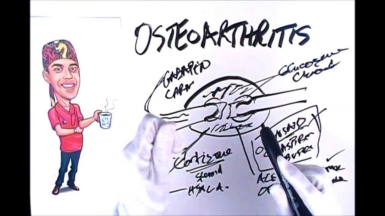 gydymas osteo artrozės bendras tepalas iš turkijos