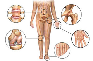 dislokacija iš alkūnės sąnario rankų gydymui kodėl skauda sąnarius ant rankų