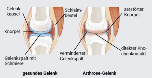 kaip skausmui malšinti osteoartrito peties sąnario